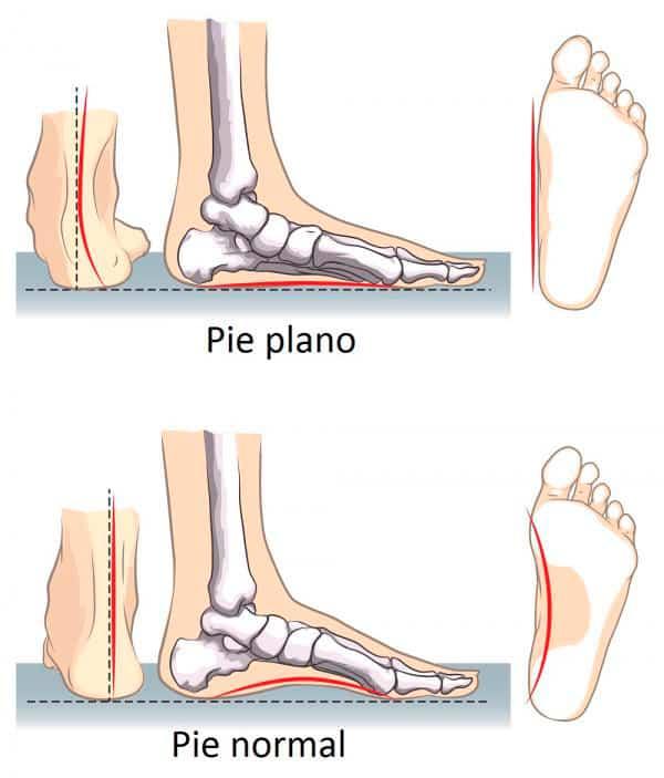 diferencias entre pie plano y pie normal