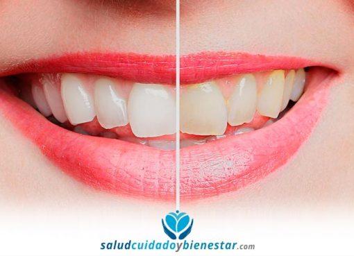 Enemigos de tus dientes: ¿cuáles son los más comunes?
