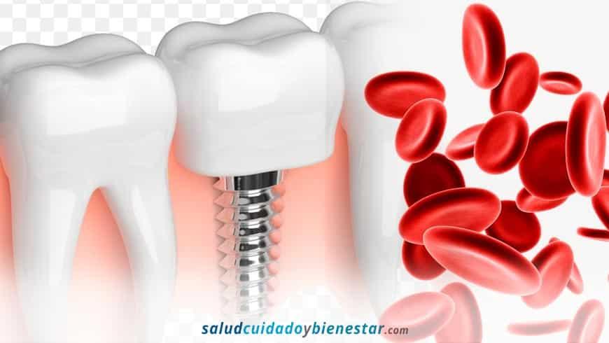¿Qué es el Plasma Rico en Plaquetas y cómo se utiliza en implantología dental?