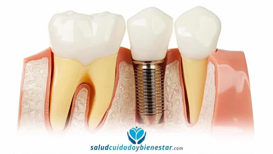 Colocación de implantes dentales en pacientes con poco hueso
