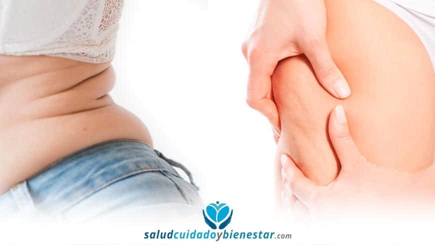 CoolSculpting, la alternativa a la liposucción – Cómo eliminar la grasa sin cirugía