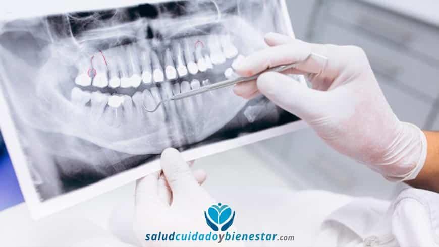 ¿Qué seguros de salud o médicos cubren implantes dentales?