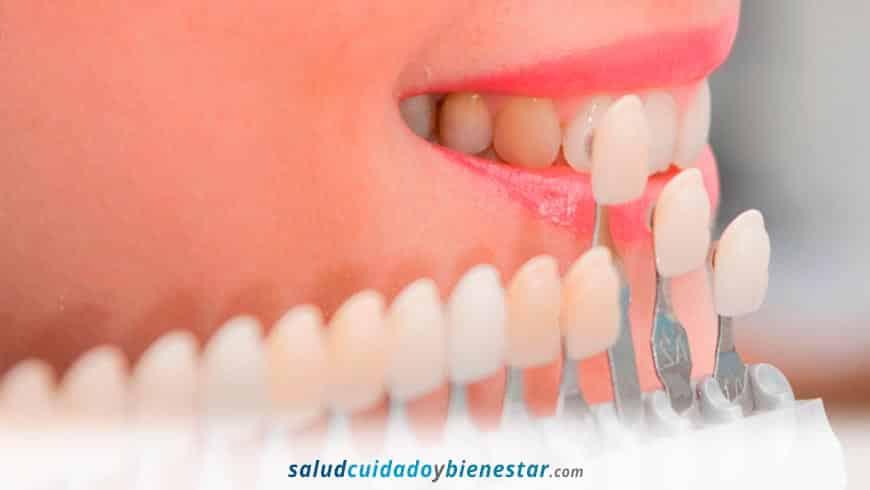 Carillas dentales, mucho más que una mera solución estética